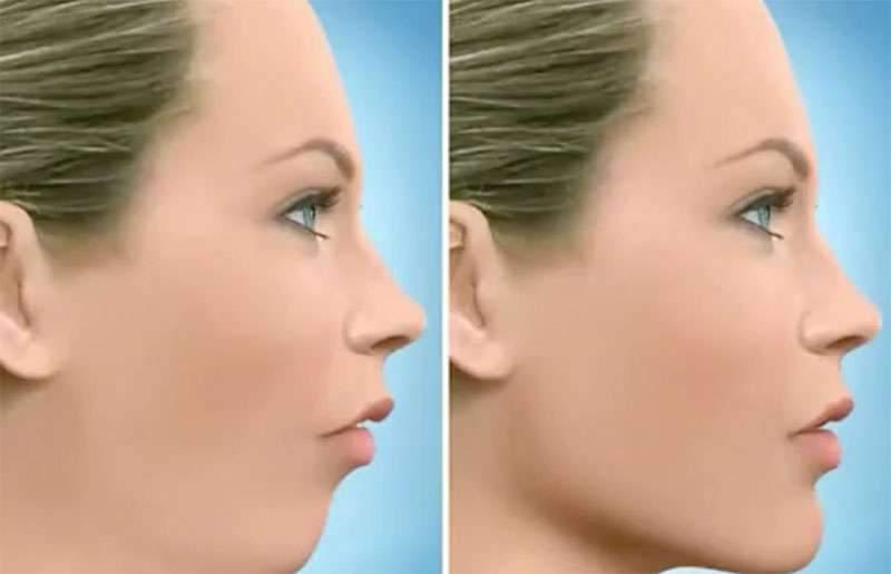 cirurgia atm maxilar