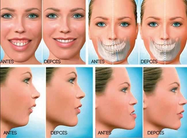 cirurgia boca maxilar