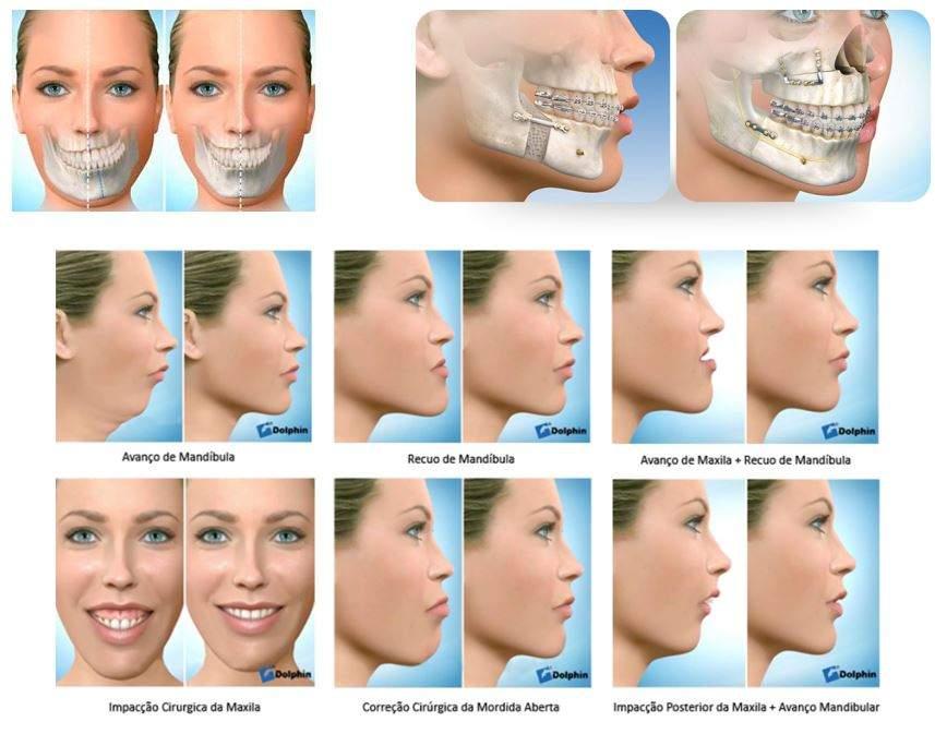 cirurgia da mandibula