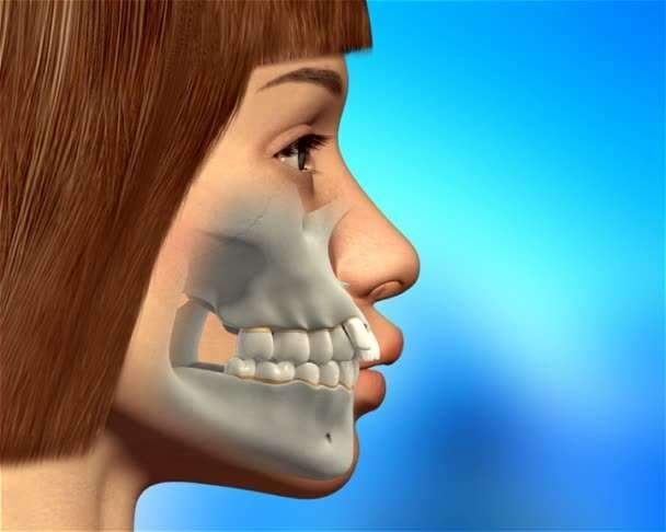 cirurgia de mandibula