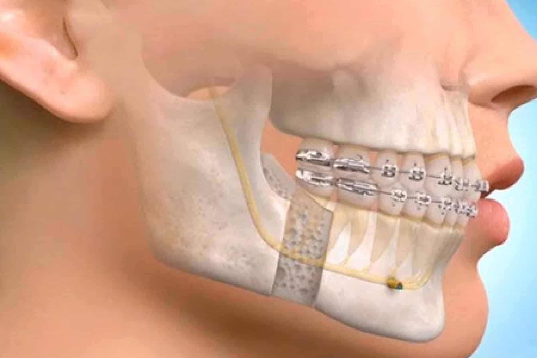 cirurgia do maxilar