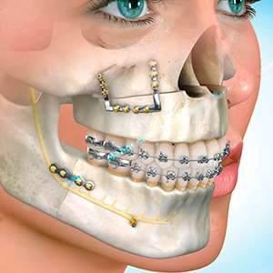cirurgia e traumatologia odontológica