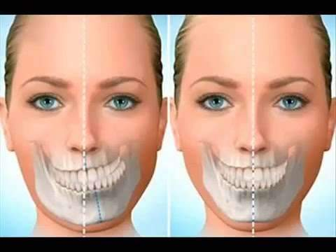 cirurgia maxilar