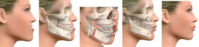 cirurgia maxilar quadrado