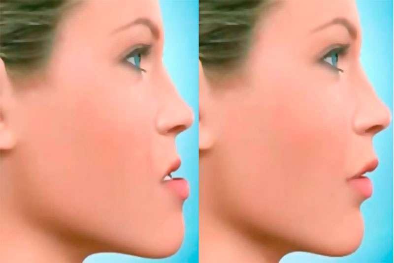 cirurgia maxilo facial preço
