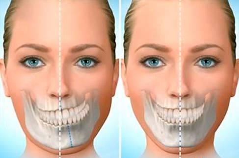 cirurgia na mandibula
