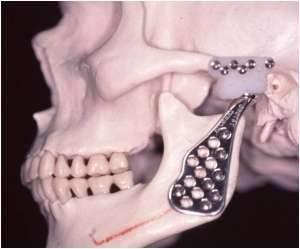 cirurgia no maxilar atm