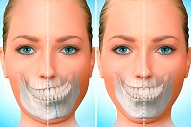 cirurgia no maxilar preço