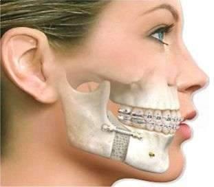cirurgia oral e maxilo facial