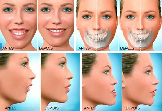 cirurgia oral e maxilofacial preço