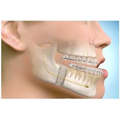 cirurgia ortodontia