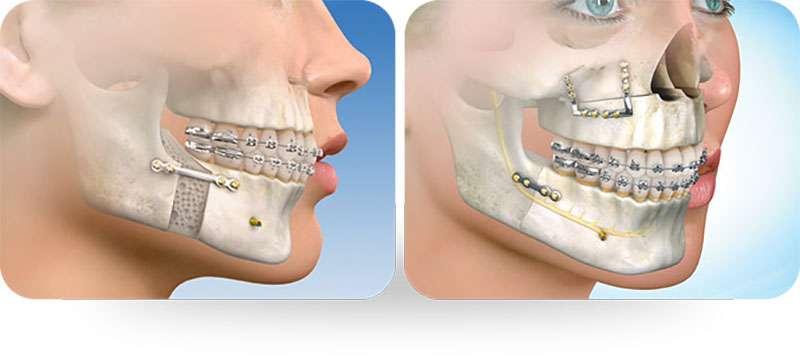 cirurgia ortodontia preço