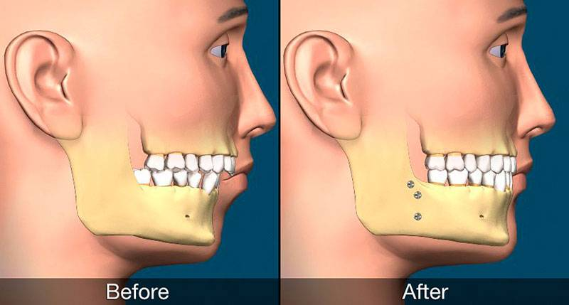 cirurgia ortognatica classe 2 recuperação