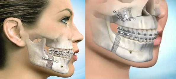 cirurgia ortognatica maxilar inferior