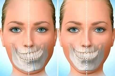 cirurgia ortognatica pós operatório