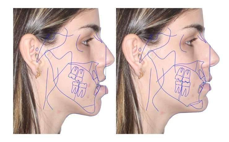 cirurgia ortognatica preço médio