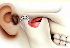 cirurgia para atm