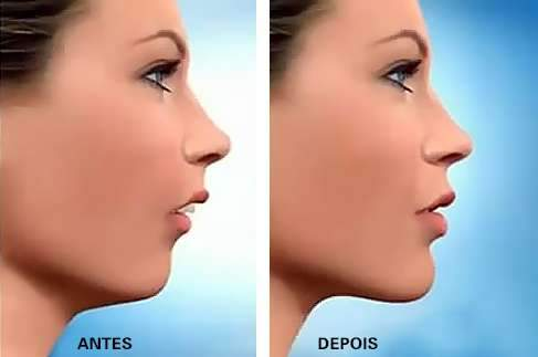 cirurgia plástica maxilar