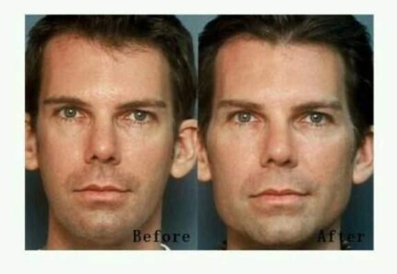 cirurgia plástica no maxilar