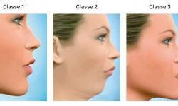 cirurgia ao maxilar inferior