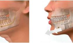 cirurgia buco maxilo quanto custa