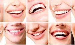 cirurgia de correção do maxilar inferior