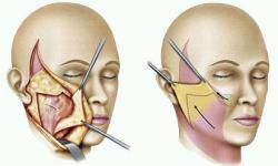 cirurgia de lifting facial