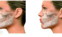 cirurgia do maxilar quanto custa
