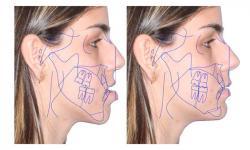 cirurgia maxilar ortognatica