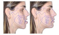 cirurgia maxilar recuperação