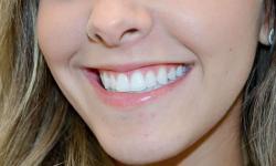 cirurgia maxilo mandibular
