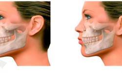 cirurgia ortognatica avanço de maxila