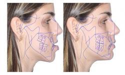 cirurgia ortognatica classe 3 valor