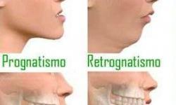 cirurgia ortognatica de mandíbula