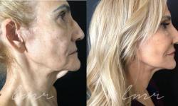 cirurgia plástica lifting facial
