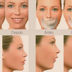 cirurgia buco facial