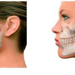 cirurgia da mandíbula inferior