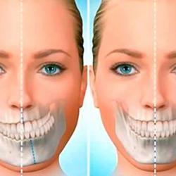 cirurgia de mandíbula preço