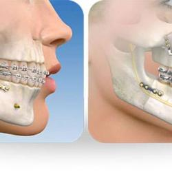 cirurgia de mandíbula quanto custa