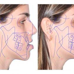 cirurgia ortognatica maxila