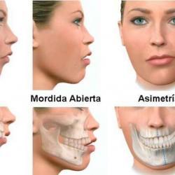 cirurgia ortognatica maxilar preço